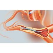 冠状介入治疗专用微导管