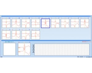 新一代高性能智能动态心电分析系统