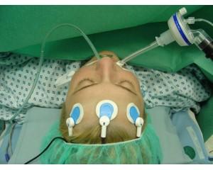 Narcotrend麻醉/脑电意识深度监测系统