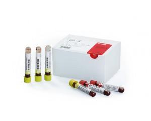 血液学质控物