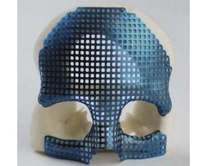 颌面修复钛网系列