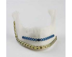 颌面修复接骨板系列