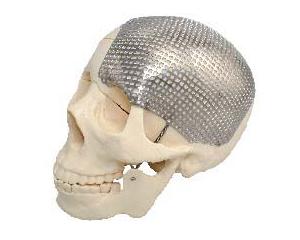 颅骨修复钛网系列