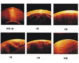 珍珠OTC扫描仪(OSG-1000)