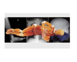 医学影像学教学模型