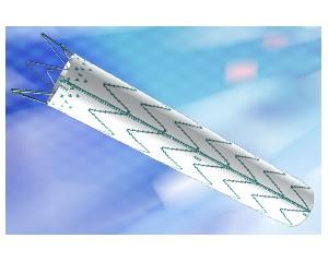 大动脉覆膜支架系统