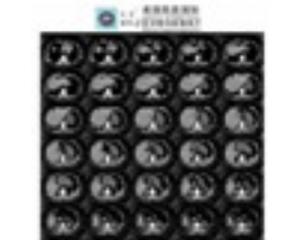 美国凯易KY-Z医学数码影像胶片