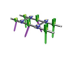 脊柱内固定器III型