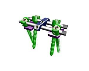胸腰椎前路钉棒系统