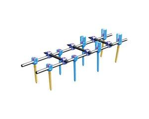脊柱内固定系统V型(5.5)