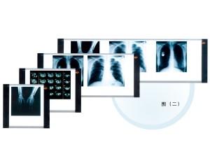 高频医用观片灯
