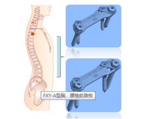 脊柱钉板类
