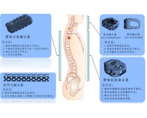 椎间融合器