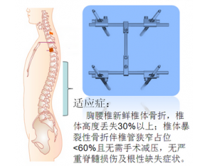 脊柱外固定支架
