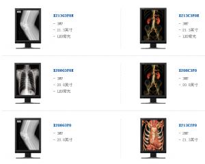放射诊断显示器
