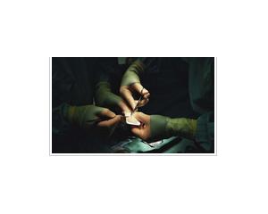 应用于自体软骨细胞移植手术中