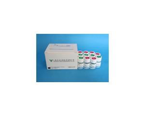 纤维蛋白(原)降解产物(FDP)测定试剂盒