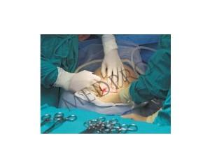 腹部通用(腹腔镜、阴腹联系)手术组合包