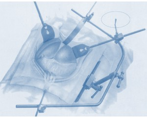 JM-I型腹部全方位牵开器
