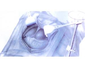 JM-II型腹部牵开器