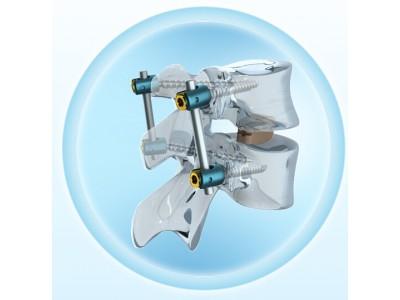 Sequoia® 胸腰部椎弓根螺钉系统,带 Ardis® 椎间系统