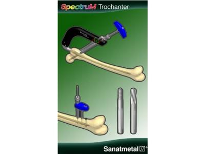Spectrum系列股骨近端髓内钉