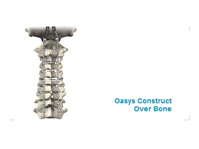 Oasys植入物系统