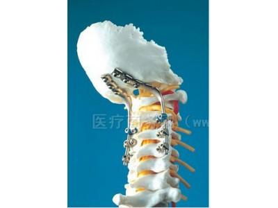 CerviFix-AO/ASIF 新型颈椎后路杆固定系统