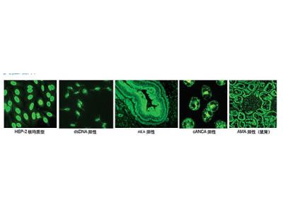 ifa-间接免疫荧光法