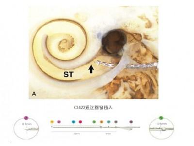 Cochlear Nucleus CI422人工耳蜗植入体直电极