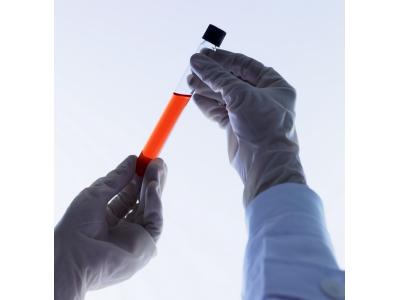 miRACLE miRNA QPCR检测系统