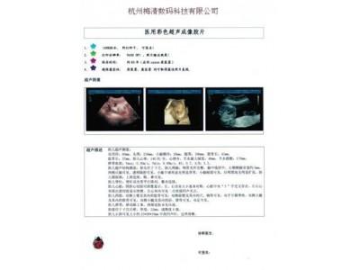 青海省激光喷墨彩超胶片
