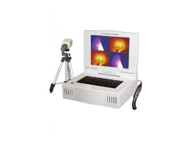 EK—9000C型(便携式分析打印)红外乳腺检查仪