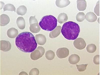 造血干细胞培养基