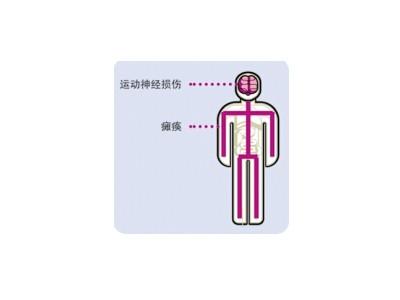脊髓灰质炎灭活疫苗