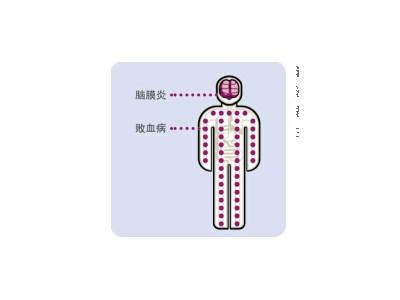 流行性脑膜炎疫苗