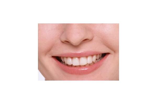 嘴唇干燥起皮撕不得 冬季护唇必知七个小贴士