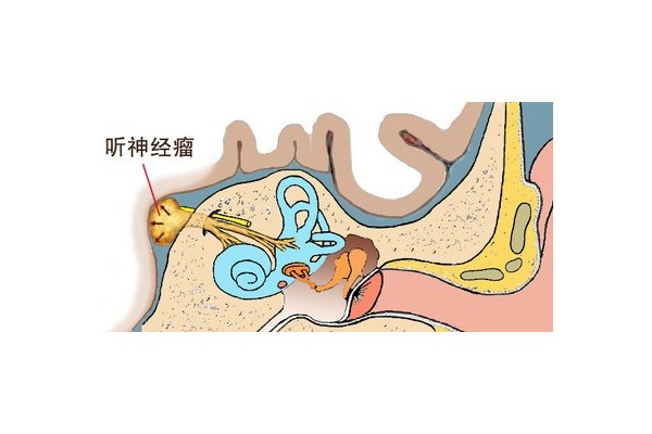 医生介绍:听神经瘤的症状与检查