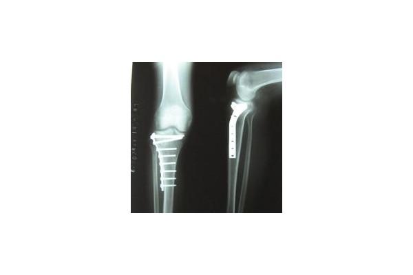 骨折伤残鉴定标准