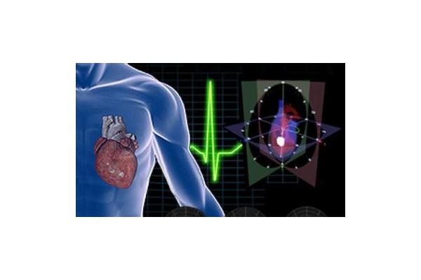 两次心电图检出心脏病 专家:动态检查不能少