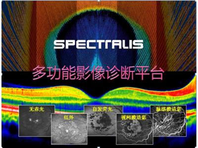 海德堡Spectralis HRA+OCT 全新多功能影像诊断平台