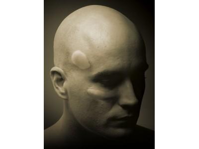 颅面缺损修复的创新产品