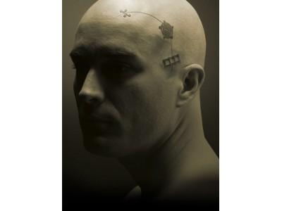 神经外科内固定系统