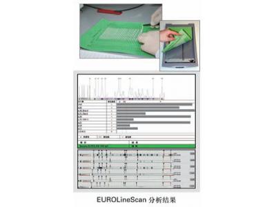 EUROLineScan印迹法判读软件(配扫描仪)