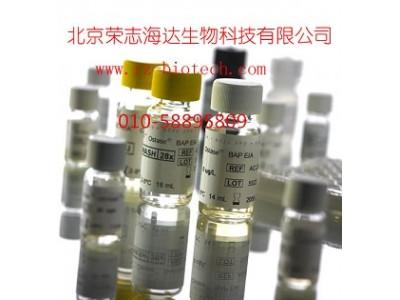 骨碱性磷酸酶检测试剂盒(酶联免疫法)