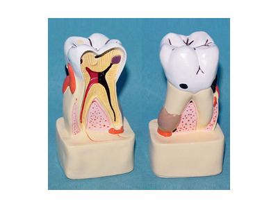 牙齿病综合病理分解