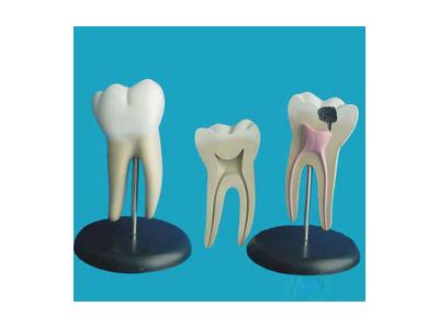 病态大磨牙