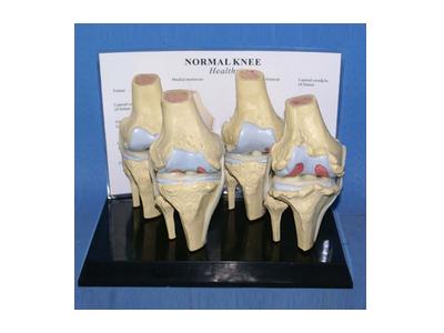 膝关节病变比较