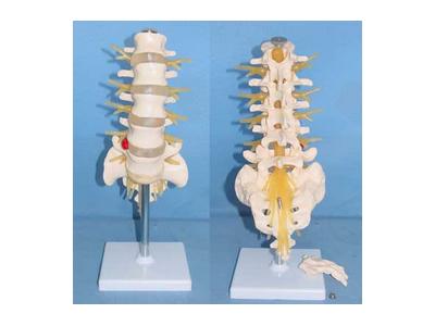 自然大腰椎带马尾神经