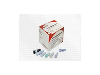 丙型肝炎病毒核酸定量检测试剂盒(PCR荧光探针法)